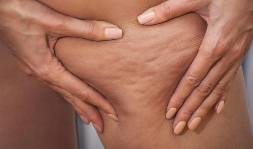 Cellulite causes - food, lifestyle, genes or