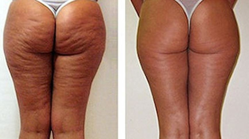 Cellulite removal before and after
