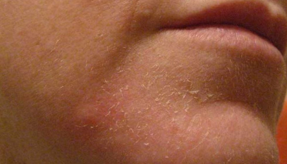 Dry flaky skin on face