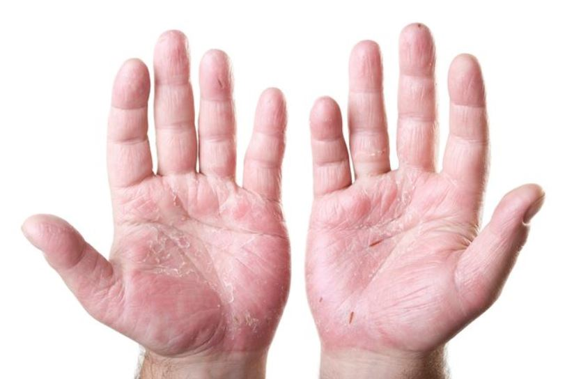 Dry hands may peel and be itchy