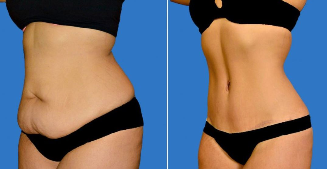 Tummy tucks before and after - Courtesy of Premier Plastic Surgery Arts