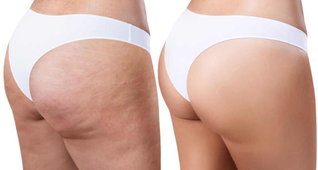 Which are the best cellulite treatments