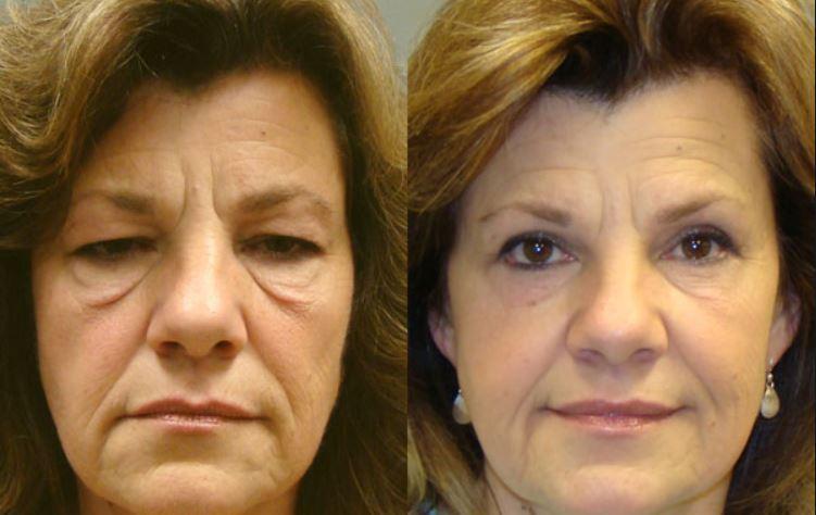 Dermal fillers may help - Courtesy of Savannah Plastics Surgery