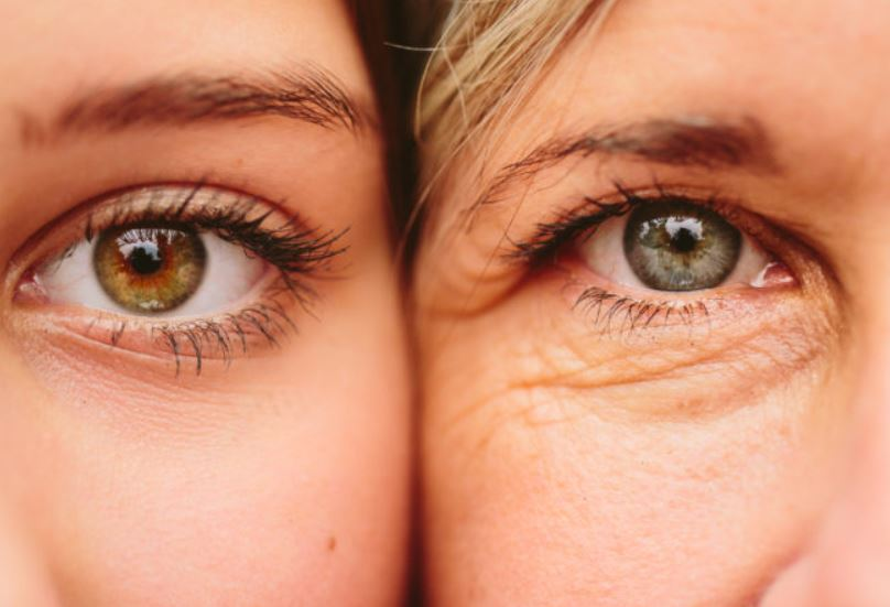 Eyes without and with saggy skin under eyes