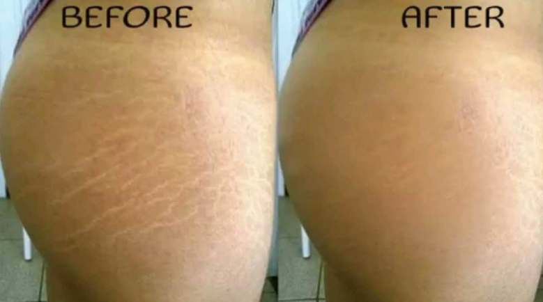 How to get rid of stretch marks - Before and after