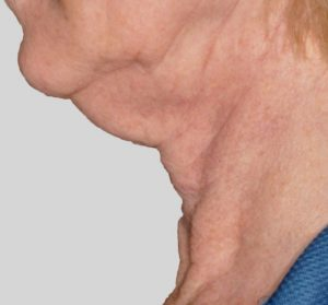 Jowl, turkey neck or sagging neck skin