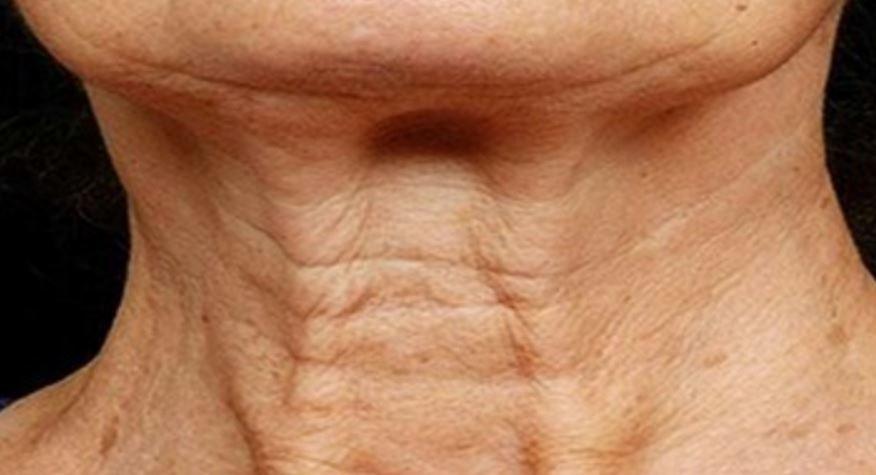 Loose skin on neck - saggy extra skin