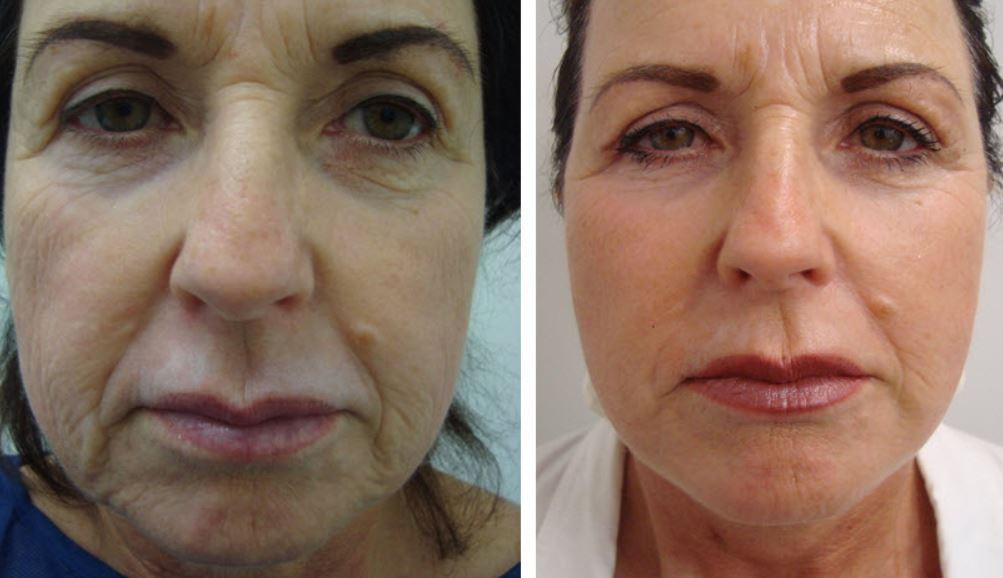Mini lift for loose facial skin - Courtesy of Dr. Daniel Lanzer