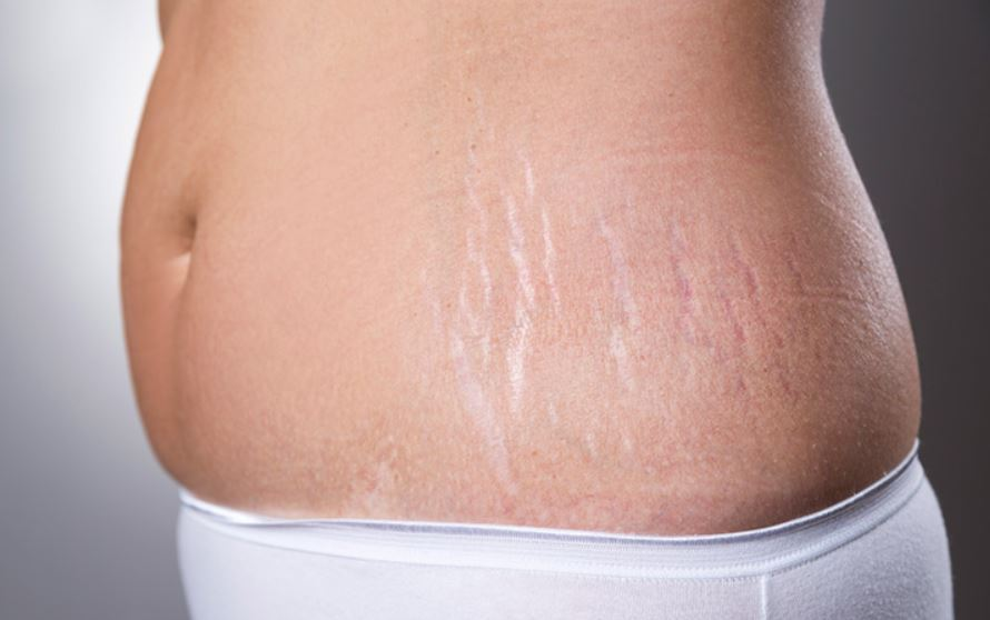 Stretch mark scars due to pregnancy