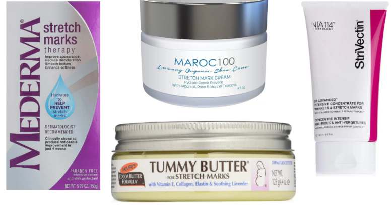 Will creams help on stretch marks