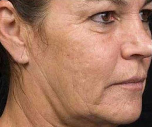 Sagging skin on face
